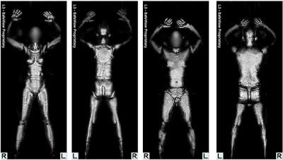 Esto ven los scanners de cuerpo de los aeropuertos.