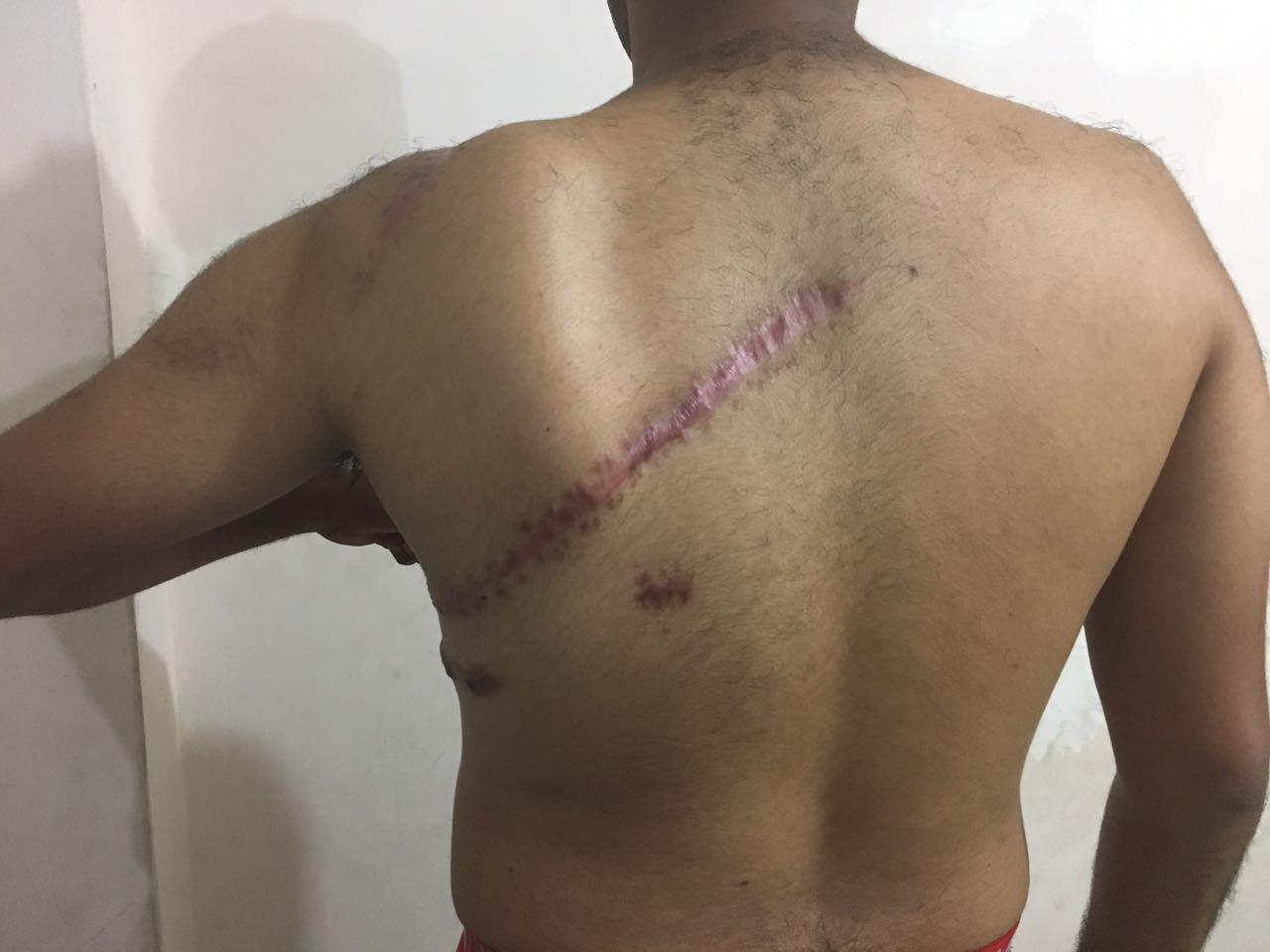 Habla Josue Veliz, la víctima de ataques con cuchillo en estadio de Barcelona (entrevista de audio)