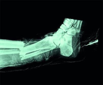 Asi te puede quedar la pierna por una lesion